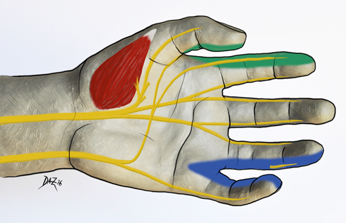 Diagram of sensory nerve transfer in the hand.