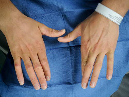 Patient can cross fingers on left hand but not on right.