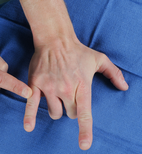 Patient extending index and small fingers while curling second and third fingers.