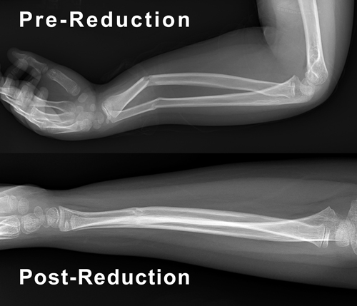 Pre-Reduction and Post-Reduction x-rays of arm.